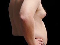 Plastic Surgery for Men: Breast Enhancement and Muscle Implants