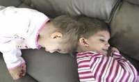 Doctors take next step in dividing conjoined twins