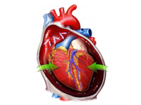 Certain Procedures are More Beneficial for Heart than Medicine