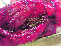 Fir tree grows inside man's lungs