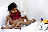 Indian girl born with four arms and four legs undergoes operation