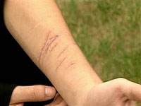 Self-injury often associated with psychological trauma caused by child sexual abuse