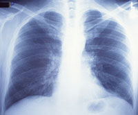 X-rays may cause breast cancer