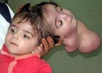 Doctors unable to save two-headed girl