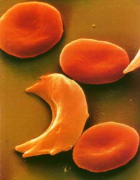 Sufferers of Sickle-cell anemia go through awful pain