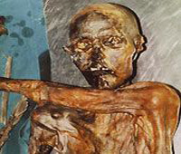 Mummy of Oetzi