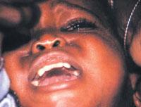 Female genital mutilation banned in Indonesia