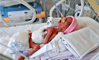 Woman Gives Birth to Twin Girls at Age 62
