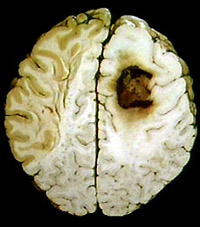 The whole-brain radiation may not improve survival