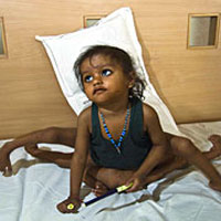 Indian girl recovers consciousness after extra limbs removal