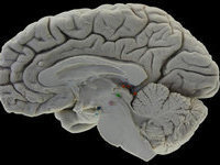 Scientists to create network of interconnected brains. 49531.jpeg