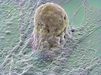 Fat May Provide Stem Cells
