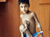 Boy liberated from parasitic twin in India for ,000. 45560.jpeg