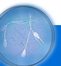 US foundation tries to preserve endangered breeds of livestock via sperm bank