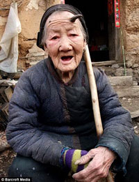 Chinese Woman Grows Big Horn on Her Head