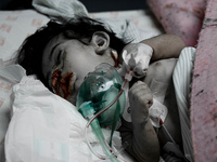 Gaza: UN reports horrific hospital scenes of civilian casualties