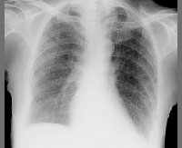 Tuberculosis may become impossible to cure