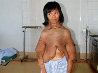 Woman s body looks like apologise, but