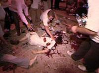 Turkey suffers from deadliest terrorist act in years