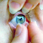 U.S. doctors see a disturbing number of fungal eye infections in contact lens wearers