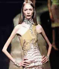 Another model falls victim of anorexia