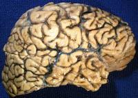 Scientists discover new gene, SORL1, which develops Alzheimer's