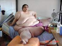 World's fattest man to be operated on with extra large surgical tools