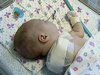 Doctors mistakenly amputate baby's arm and shoulder joint
