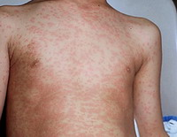 America experiences new outbreak of measles
