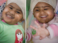 Doctors Performed Miracle to Bangladeshi Twins