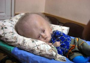 Russian Boy with Gigantic Head Prepares for Surgery