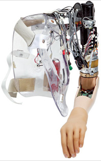 Modern medicine offers Terminator's bionic arm for 170,000 USD