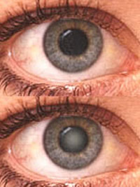 Surprising results of test: statin drugs' may help people protect against cataracts