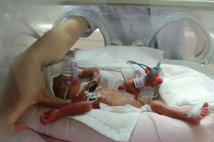 Pocket-sized baby born in China