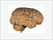 People suffering from cranial injuries develop extraordinary abilities