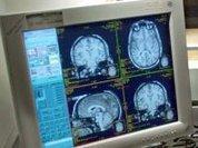 Urban life affects the human brain, says study