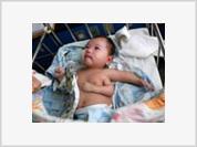 Three-armed baby born in China