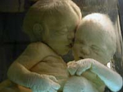 Moderm surgery gives normal life to Siamese twins