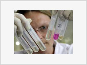 Swine Flu Plays Nasty Trick on Russia's Healthcare
