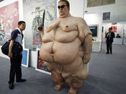 Morbid obesity: Surgery only option?