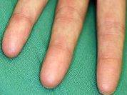 No fingerprints?