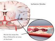 One in seven strokes occur during sleep