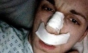 Man loses nose in bizarre incident in Chelyabinsk