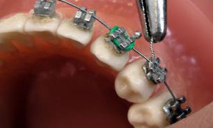 Photodynamic Therapy: the light for a new era in the treatment of dental infections